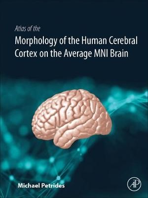 Atlas of the Morphology of the Human Cerebral Cortex on the Average MNI Brain -