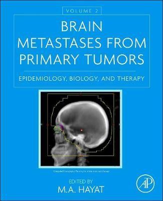 Brain Metastases from Primary Tumors, Volume 2 -