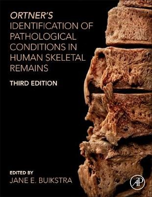 Ortner's Identification of Pathological Conditions in Human Skeletal Remains -