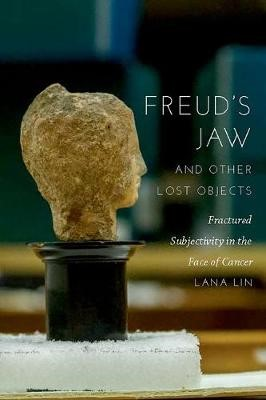 Freud's Jaw and Other Lost Objects - pr_237450