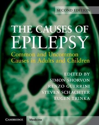 The Causes of Epilepsy -