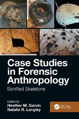Case Studies in Forensic Anthropology -