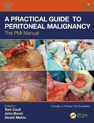 A Practical Guide to Peritoneal Malignancy - pr_1714614