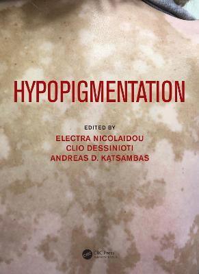 Hypopigmentation - pr_393142