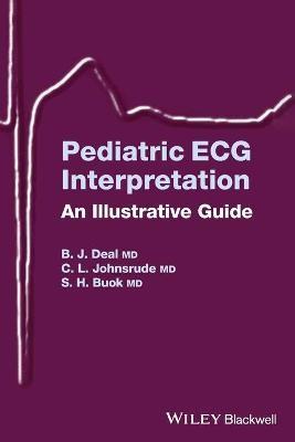 Pediatric ECG Interpretation - pr_303926