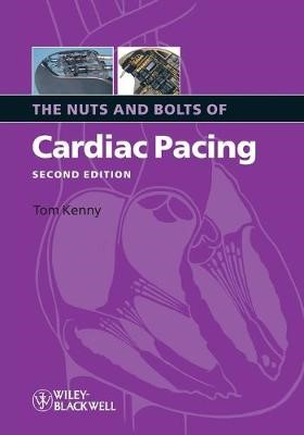 The Nuts and Bolts of Cardiac Pacing - pr_303980