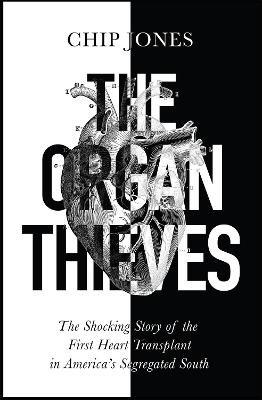 The Organ Thieves - pr_1780602