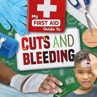 Cuts and Bleeding - pr_416661