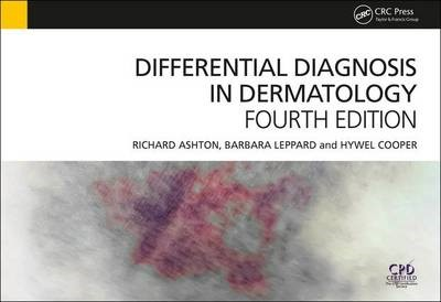 Differential Diagnosis in Dermatology - pr_200480