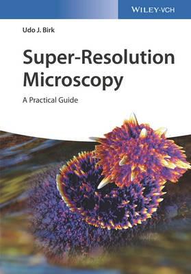 Super-Resolution Microscopy - pr_343684