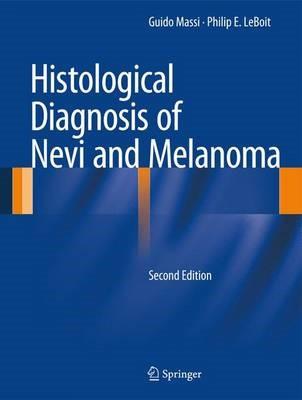 Histological Diagnosis of Nevi and Melanoma -
